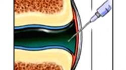 Intraarticular Injection of Infliximab not Effective in Patients with Inflammatory Arthritis