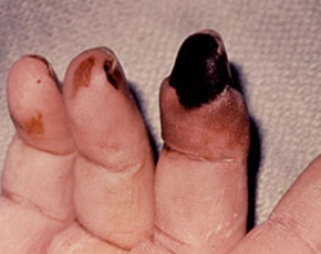 Study Indicates Temporal Decline in Rheumatoid Vasculitis