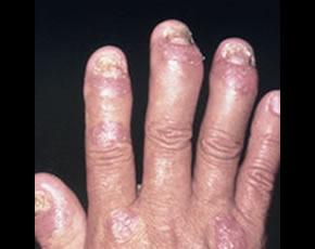 Rheumatoid Vasculitis