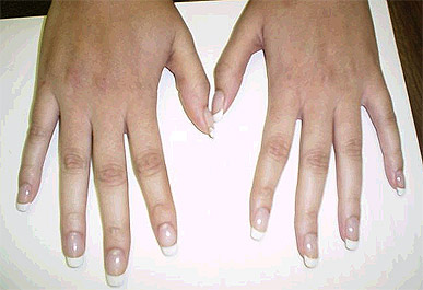 picture of hands