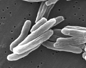 Electron Micrograph of Mycobacterium Tuberculosis