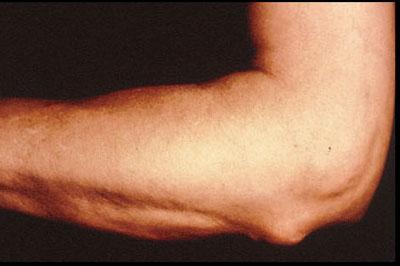 Acute rheumatic fever - MedicineNet
