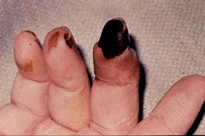 Rheumatoid Vasculitis in Rheumatoid Arthritis Patient