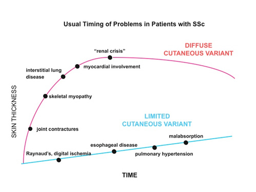 Usual Timing of Problems in Patients with SSc