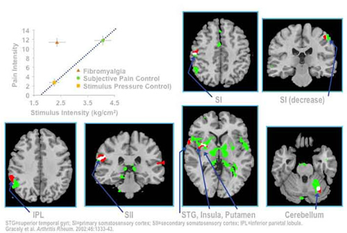 Stimuli and Responses During Pain Scans