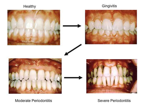 Healthy to Severe Periodontitis