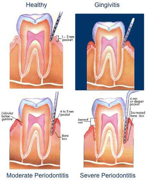 Examples of Periodontal Progression