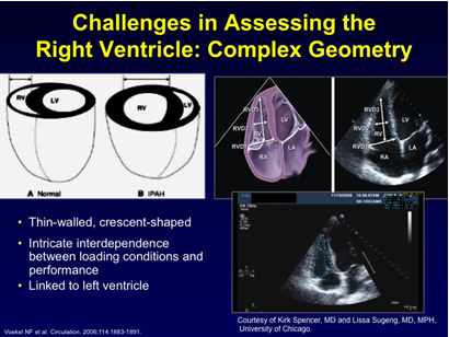 Challenges in Assessing the Right Ventricle: Complex Geometry