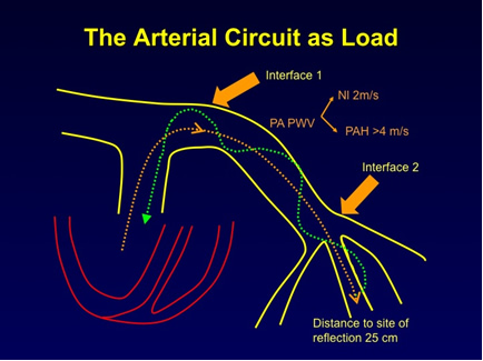 The Arterial Circuit as Load