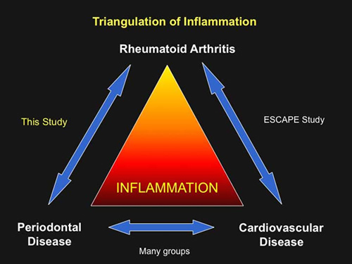Triangulation of Inflammation