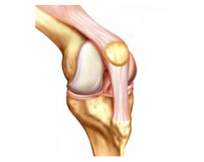 Knee Strengthening May Protect Against Cartilage Loss