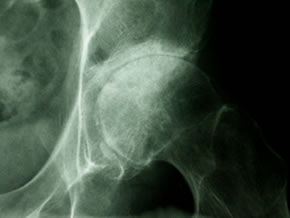 Radiograph showing advanced Osteoarthritis of the hip.