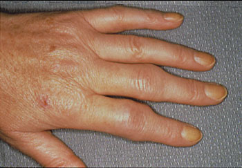 Swelling of the joints from Rheumatoid Arthritis