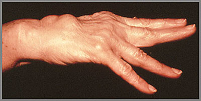Deformity of the hand from Rheumatoid Arthritis