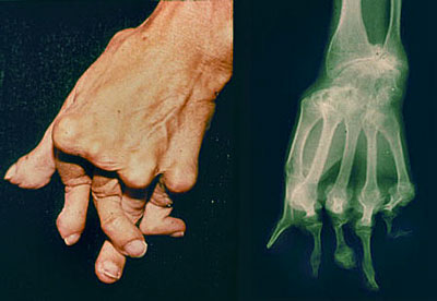 Advanced deformity in the hand from Rheumatoid Arthritis