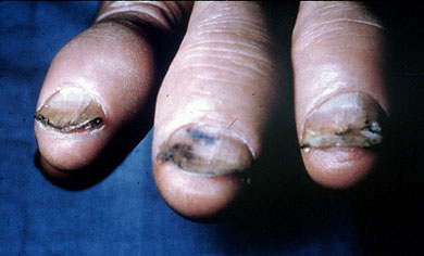 example of onycholysis