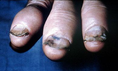 example of onycholysis