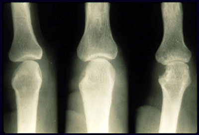 Erosion of the joints from Rheumatoid Arthritis