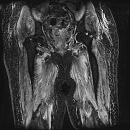 mri of thigh with diffused edema-like changes