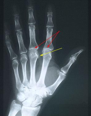 Radiographic Image Analysis by Kathy McQuillen Martensen (2014, Hardcover)