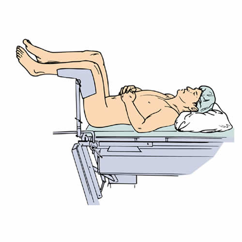 Supine Lithotomy