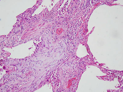 fibroblastic foci on open lung biopsy