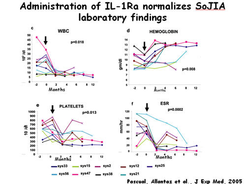 Administration of IL-1Ra Normalizes SoJIA Labratory Findings