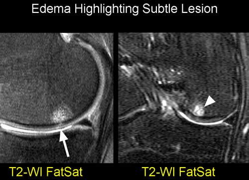 What is bone edema in foot