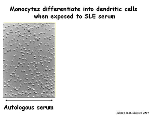 Monocytes Differentiate into Dendritic Cells when exposed to SLE Serum