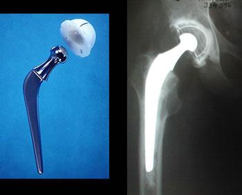 Round 9 Update On Hip And Knee Arthroplasty Arthritis